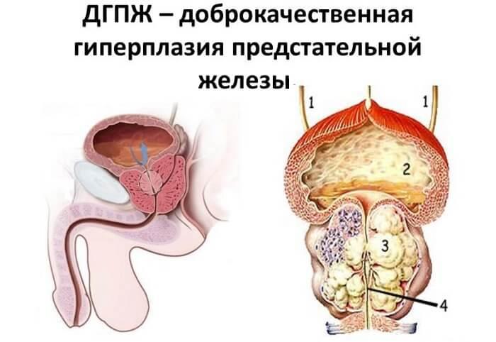 ДГПЖ симптомы