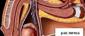 Диагностика и лечение рака яичка