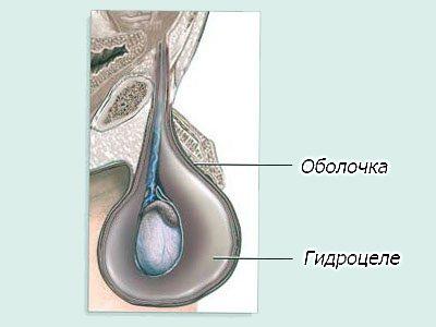 Гидроцеле — осложнения после операции варикоцеле.