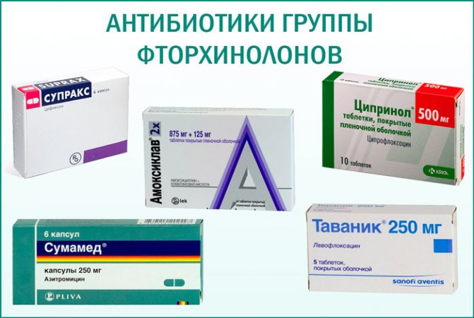 антибиотики при острой форме простатита