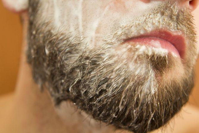Как появляется перхоть на бороде и усах