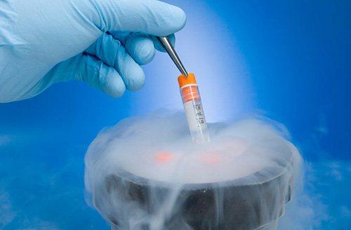 Криоконсервация спермы