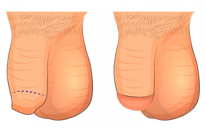 Обрезание крайней плоти у мужчин