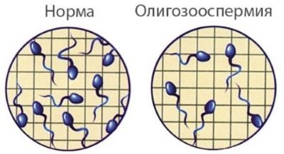 Олигоспермия у мужчин: причины, степени, лечение