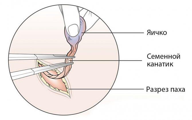 Орхиэктомия - удаление яичек