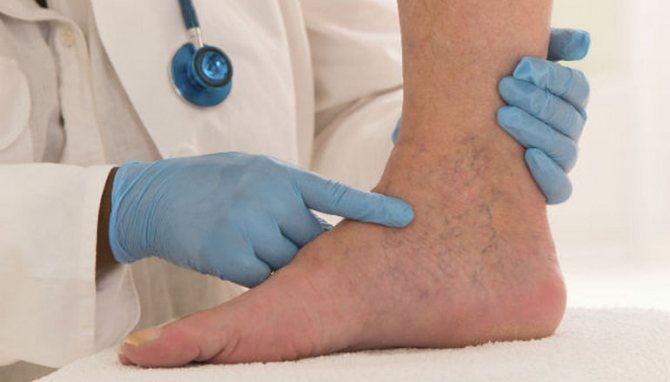 Отеки ног у мужчин причины и лечение препараты