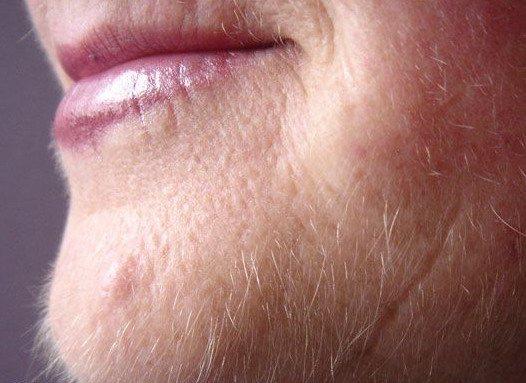 Почему у женщин растет борода?