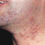 После бритья на лице часто появляются прыщи
