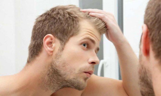 Причины перхоти на голове у мужчин