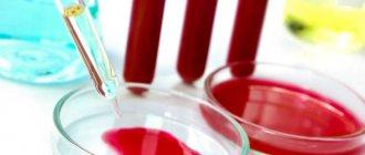 ПСА при аденоме простаты: отклонение от нормы, причины, подготовка к анализу