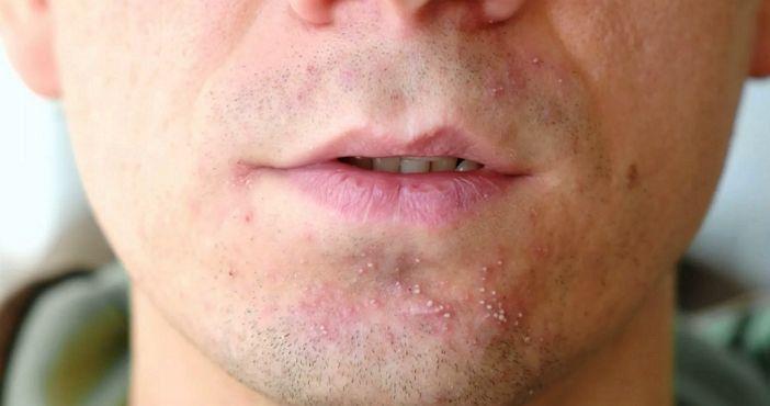 Раздражение у мужчин после бритья