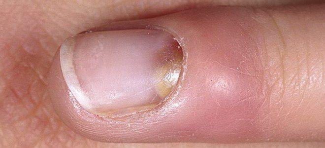 Стафилококк на коже рук